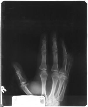 手X射线-ID:4041768
