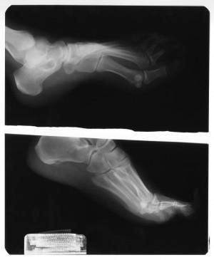 脚X射线-ID:4041783