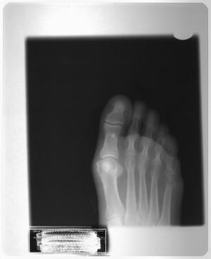 脚X射线-ID:4041800