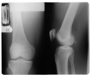 膝关节X射线-ID:4041804
