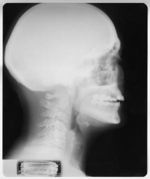 头X射线-ID:4041807