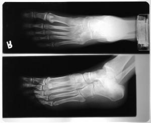 脚X射线-ID:4041809