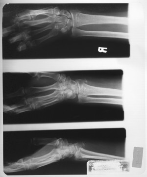 手X射线-ID:4041816