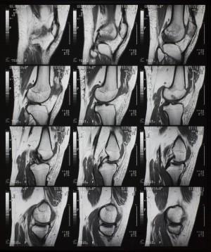 CT磁共振成像-ID:4041821
