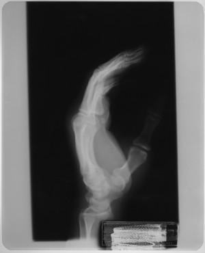 手X射线-ID:4041825