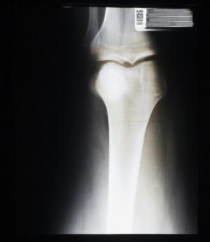 膝关节X射线-ID:4041832