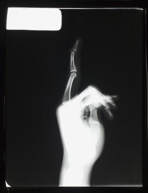 手X射线-ID:4041839
