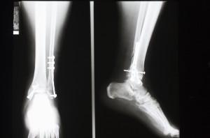 脚X射线-ID:4041840
