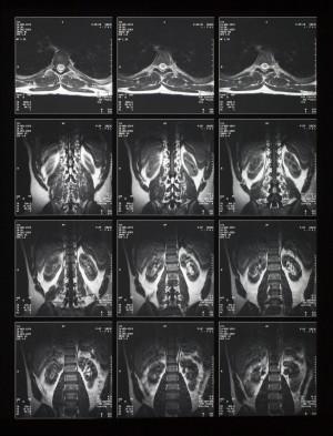 CT磁共振成像-ID:4041844